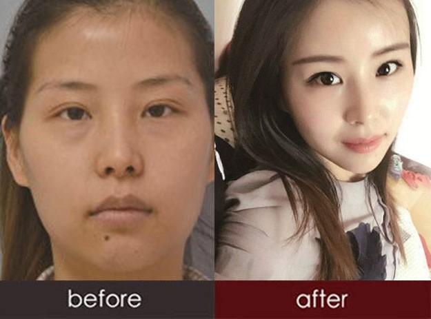 面部自体脂肪填充