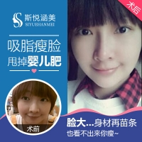 北京吸脂瘦脸 面部吸脂 10年以上整形从业专家亲诊  吸脂满意度>90%