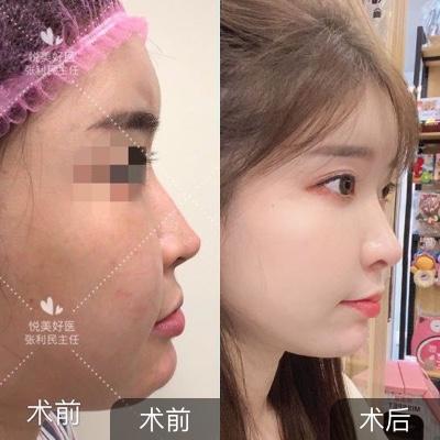 半肋鼻综合