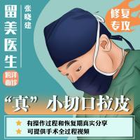 小切口手术提升 小切口拉皮中下面部拉皮