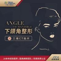 3D下颌角 下颌角整形❶流畅截骨弧度❷下颌角切除术❸刘先超亲诊❹专注颌面轮廓 颧骨颧弓